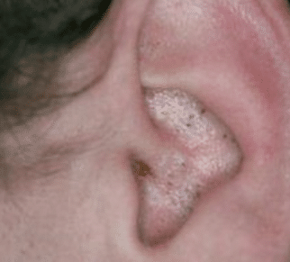 blackheads inside ear