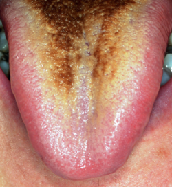 Hairy Tongue Wiki 30
