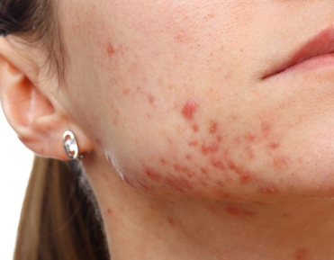 cystic acne on jaw line