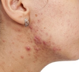 Pimples on Neck, Back, and Jawline ... - lightskincure