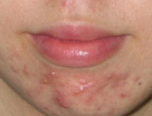 Cystic acne on chin, Jaw Line, Pictures, Causes, Hormonal, How to get Rid of Cure and Treatment