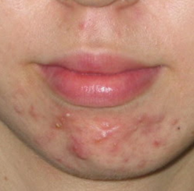 Adult acne cysts face bump