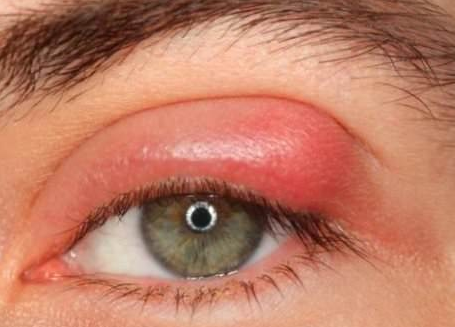 lump on eyelid picture