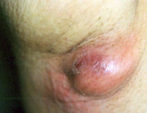 Lump under armpit, Painful, Pea Sized, Causes, Treatment and Pictures