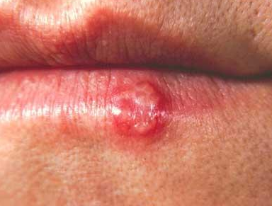 Bump on lips not painful a cold sore fordyce spots white red red bump on lips not a cold sore ccuart Choice Image
