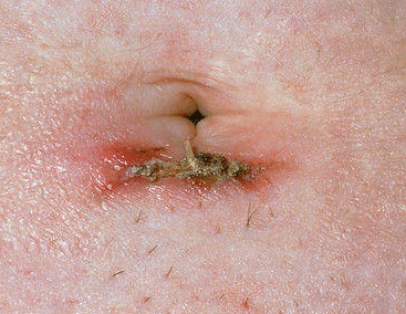 yeast infection clitoris itching