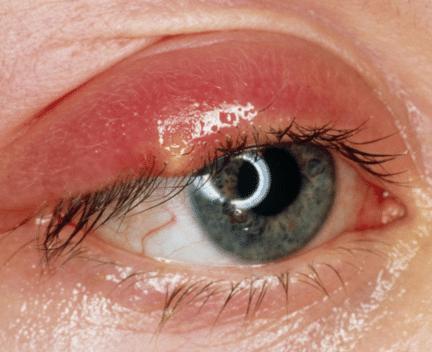 stye on eyelid