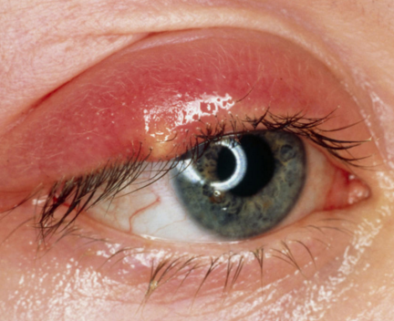 How to get rid of a stye on under eyelid pics