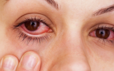 Swollen Eyes from Crying, Puffy, Under Eye, How to Get Rif of it ...