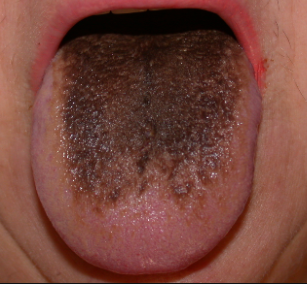 what causes black hairy tongue