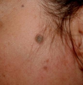 black spots on skin, face