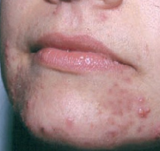 Pimples around Mouth, Lips, Chin, Meaning, Hormonal Acne ...