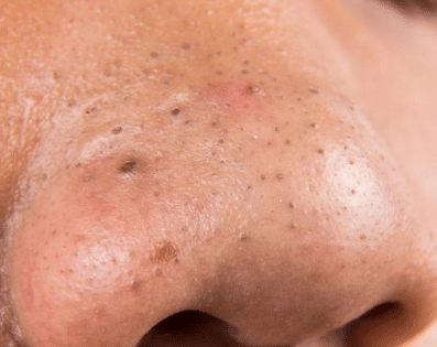 blackheads on nose picture