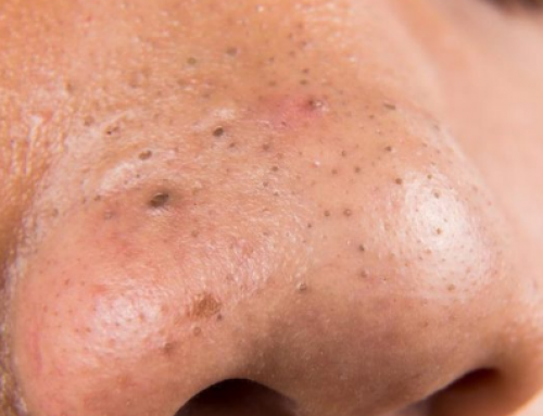 How to Remove Blackheads from Nose, Instantly, Permanently, with Tool, Extractor, Glue, Remedies