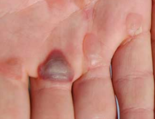Blisters on hands, Fingers, and Feet, Burn, Pictures, Child, Pictures, Get Rid and Treatment