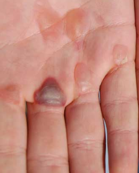 blisters on hands and fingers