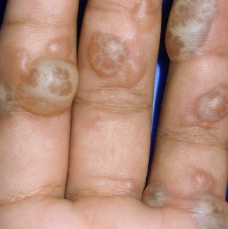 blisters on hands