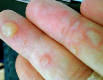 burn blisters on hands