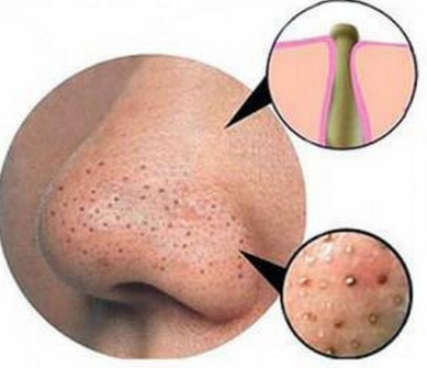 causes of blackheads on nose