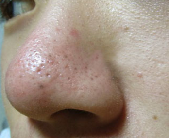 clogged pores on nose causes whiteheads