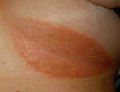 Rash Under Breast Heat Yeast Infection Itching