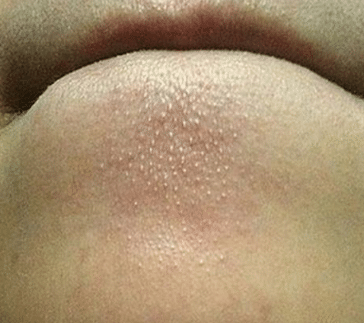 how to get rid of whiteheads on chin
