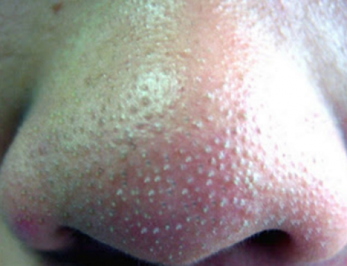 Whiteheads on Nose, Causes, Clogged Pore, Removing, Treatment Home Remedies and Pictures