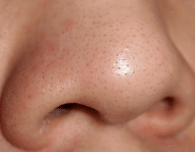 how to remove blackheads from on nose fast