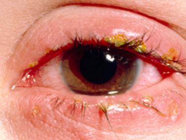 itchy crusty eyelids