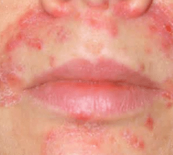 how to get rid of dermatitis around mouth