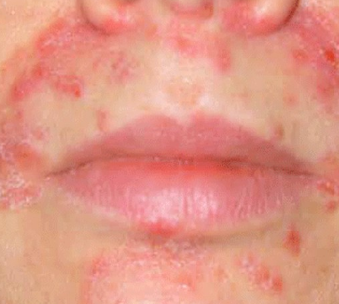 pimple acne around mouth