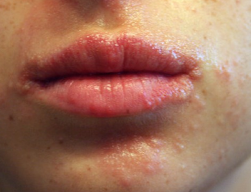 Pimples around Mouth, Lips, Chin, Meaning, Hormonal Acne, Get Rid