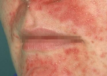Something Facial rash around mouth