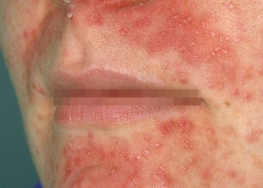 Rash Around Toddlers Mouth