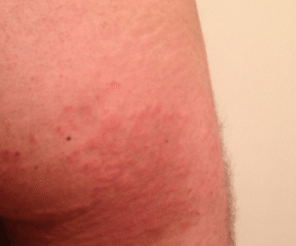 how to get rid of heat rash on chest