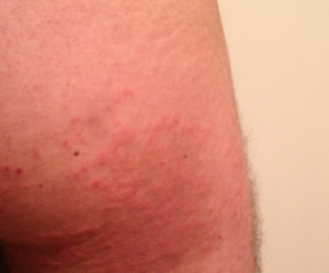 Pics of herpes rash on inner thigh - pen.adfikot.asia
