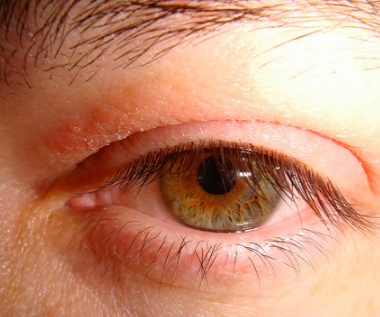 Burning Sensation on Eyelids - Buzzle