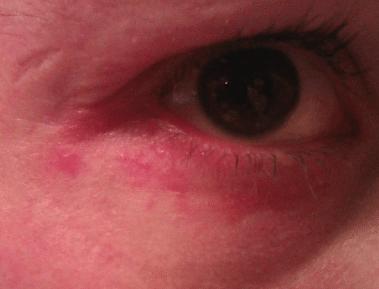 swollen lower eyelid