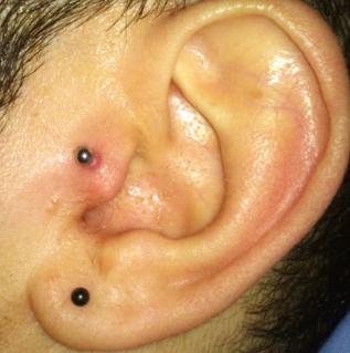 tragus piercing bump