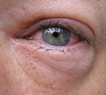 swollen under eye with pain