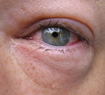Red patch in corner of eyelid swelling