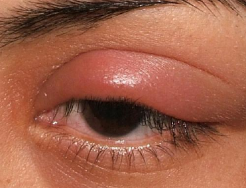 Swollen Upper Eyelid, Lower Eyelid, Causes, Pain When Blinking, Treatments,Remedy