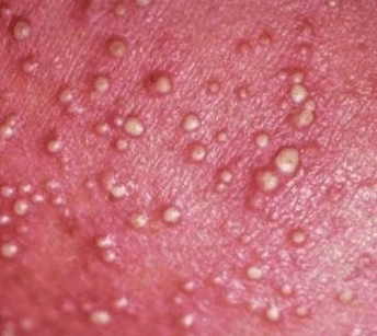 small white bumps on skin