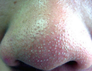 whiteheads on nose causes