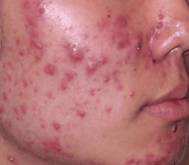 acne pimples on cheeks