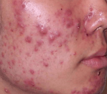 Pimples on Cheeks, Small, Painful, Causes, that won't go ...