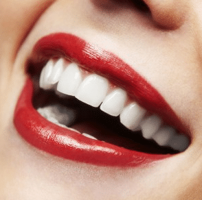 does baking soda whiten teeth