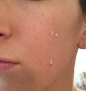 how to avoid pimple sscars on face