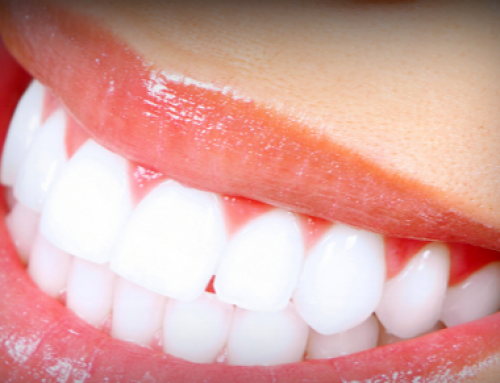 How to Whiten Teeth Fast, With or without Baking Soda, at Home Naturally, Hydrogen Peroxide