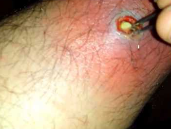 infected ingrown hair on legs